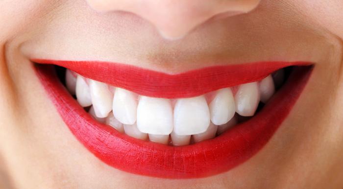 Resultado de imagen de estetica dental